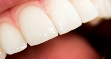 Coroana din zirconiu, solutia estetica de reconstructie dentara